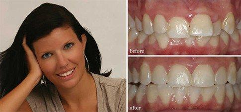 Greenville, NC Dentists | Bowman, Padgett and Associates